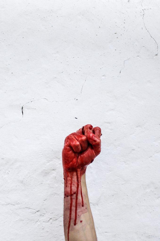 ręka ociekająca krwią
